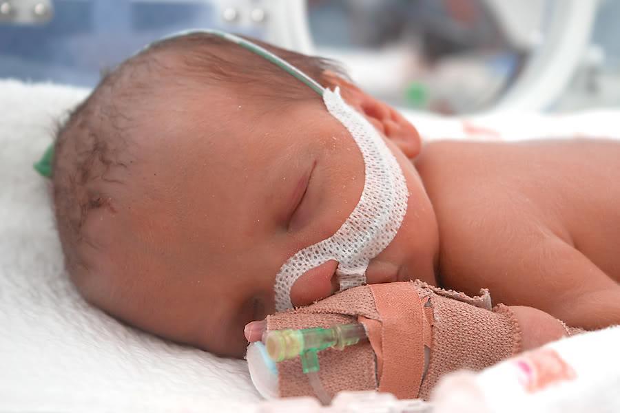baby premature under 37 weeks