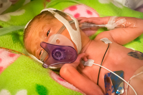 premature babies weight at birth