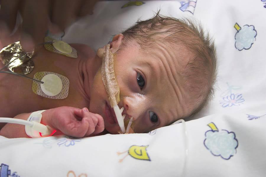 baby eyesight premature babies